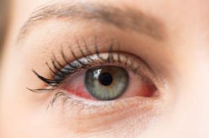 Use Rain Eye Drops for Chronic Dry Eyes